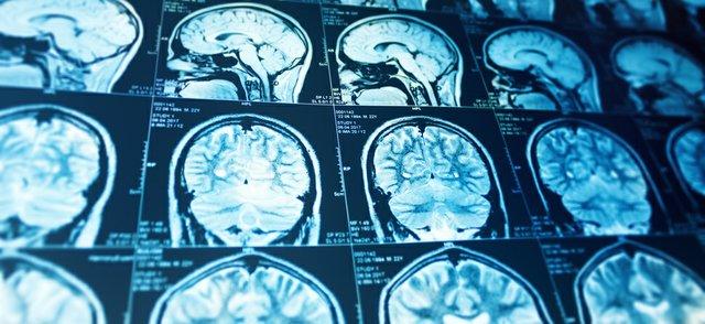 Neurosurgery (1).jpg