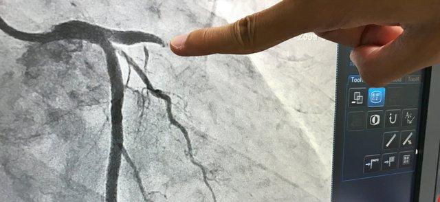 Coronary disease.jpg