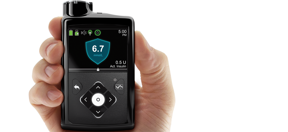 Medtronic launches insulin pump system for Type 1 diabetes