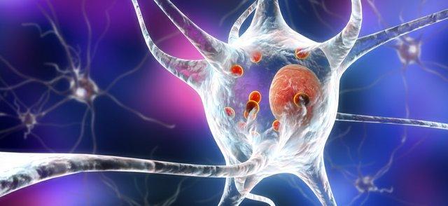 Parkinson's.jpg
