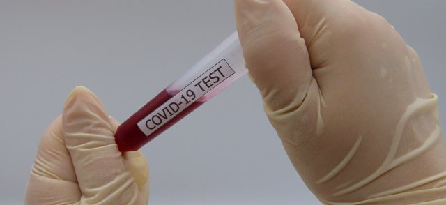 covid-19 blood test.jpg