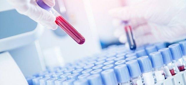 antibody.jpg