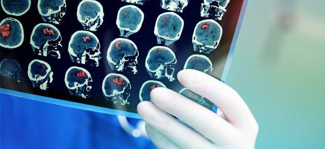 PET scanning.jpg