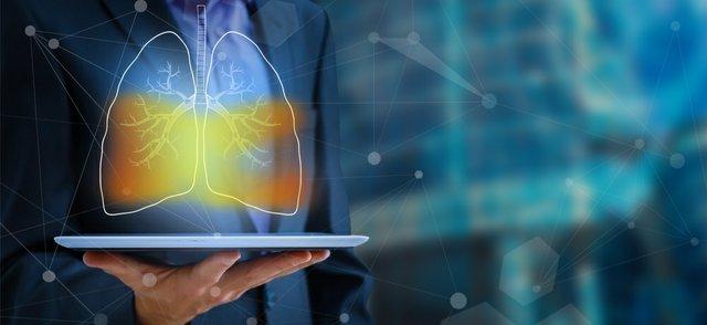 AI lung.jpg