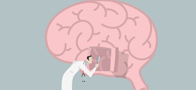 brain disorder.jpg