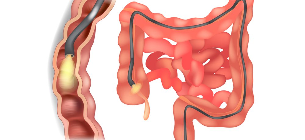 How (good) AI is revolutionising colonoscopy