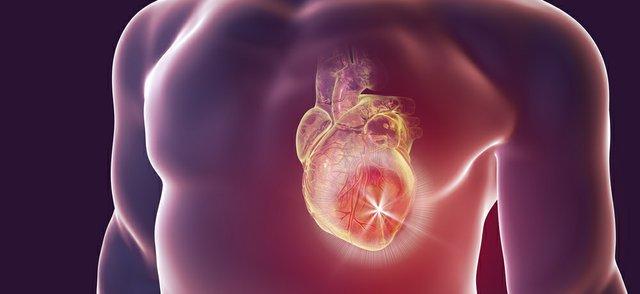 myocardial infarction.jpg