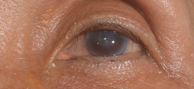 corneal edema.png