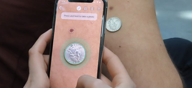 Taking photo of a mole and a coin.jpg