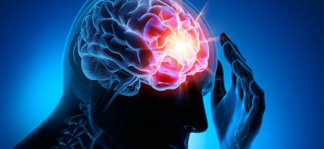 intracranial pressure.png