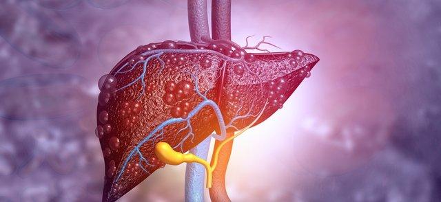 liver disease.png