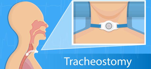 tracheostomy.png