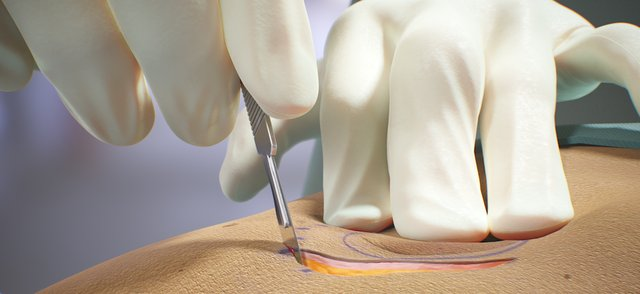 FundamentalVR Soft Tissue Capabillities 01.png