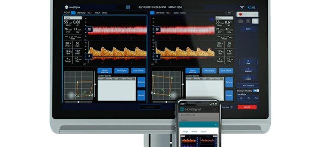 NovaGuide 2 Platform.jpg