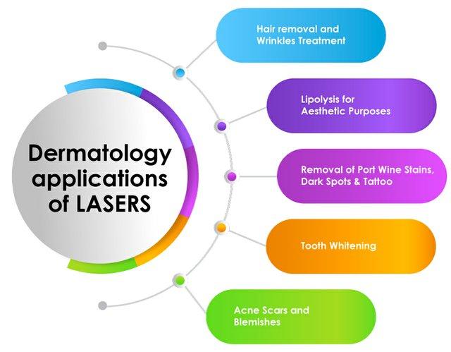 LaserBased_Img1.jpg