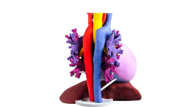 3D-Systems--Patient-specific-anatomical-model-takes-2D-medical-i